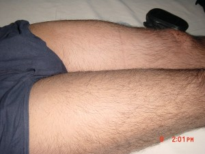 Swelling Left Thigh