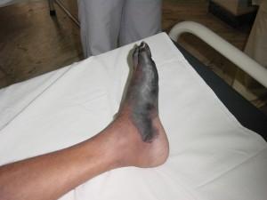 Dry Gangrene Left Foot Medial Aspect