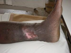 Ulcer Medial Aspect