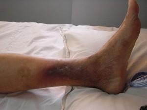 DVT With Dermatitis