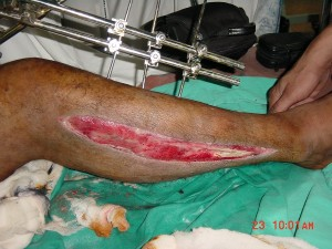 Lateral Fasciotomy
