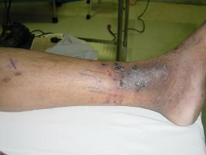 Dermatitis Left Leg