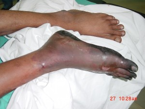Lt Foot Demarcated Till Ankle