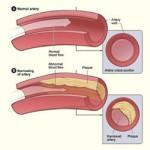 Arterial Disease 4